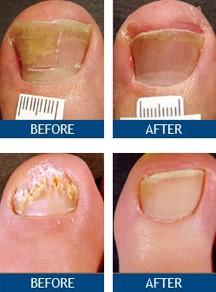 Laser Nail Fungus Treatment